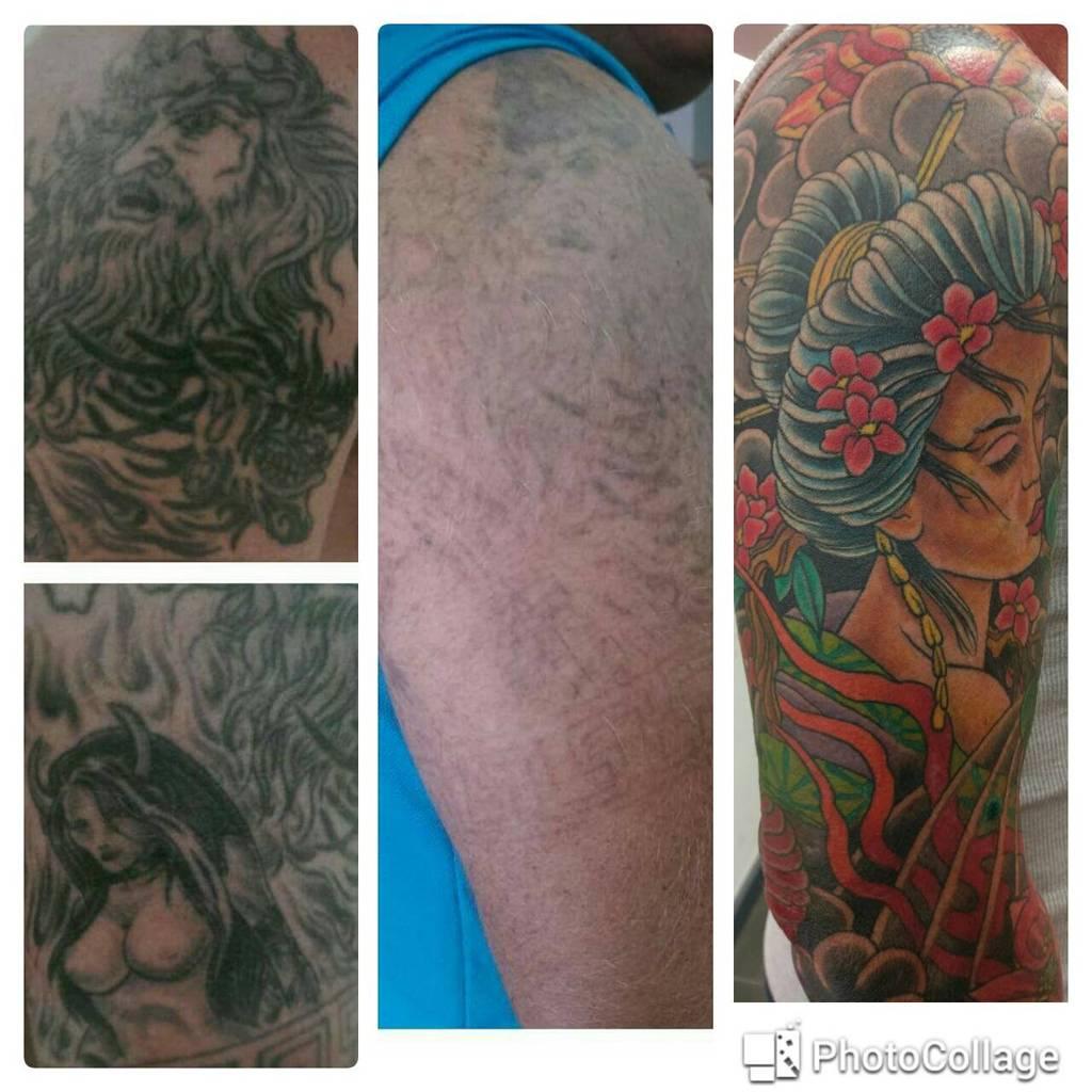 Laserpro Tattoo Removal