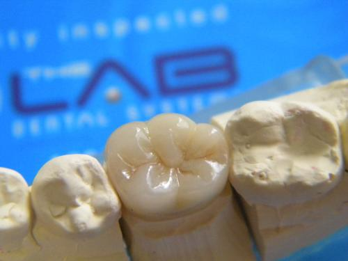 The Lab Dental Systems
